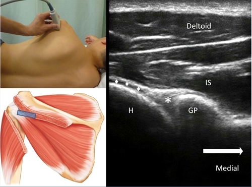 Why Ultrasound Injections and Diagnostics are Superior