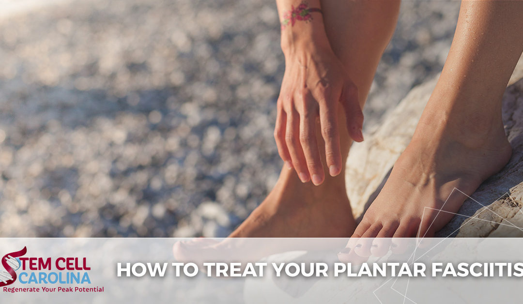 How to Treat Your Plantar Fasciitis