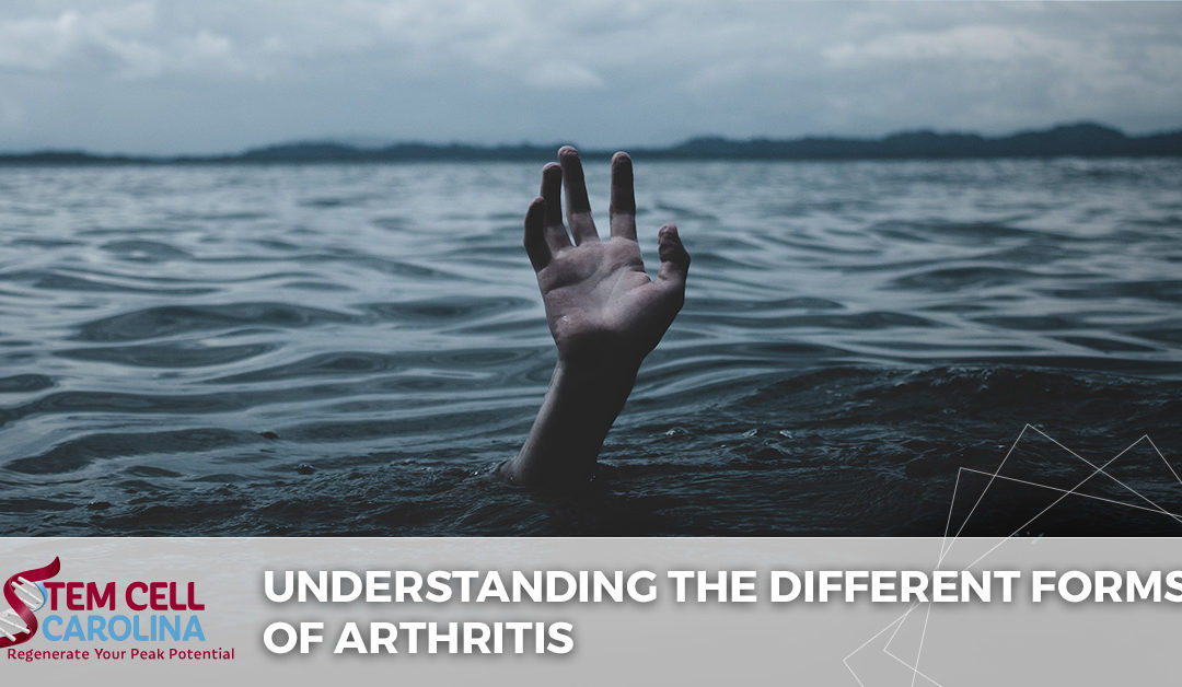 Understanding the Different Forms of Arthritis