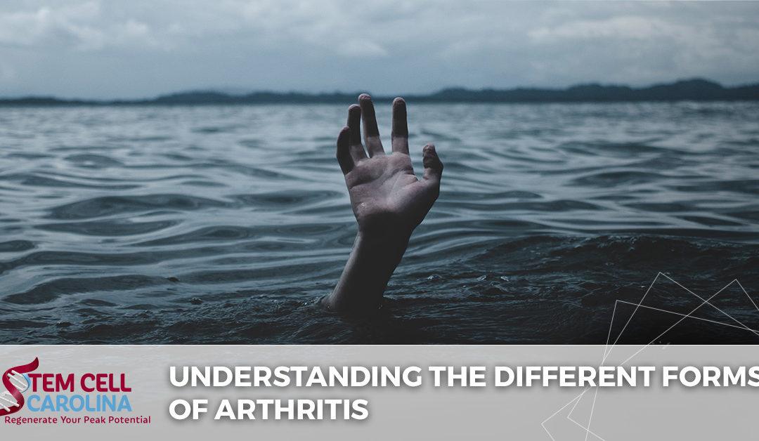 understanding the different forms of arthritis