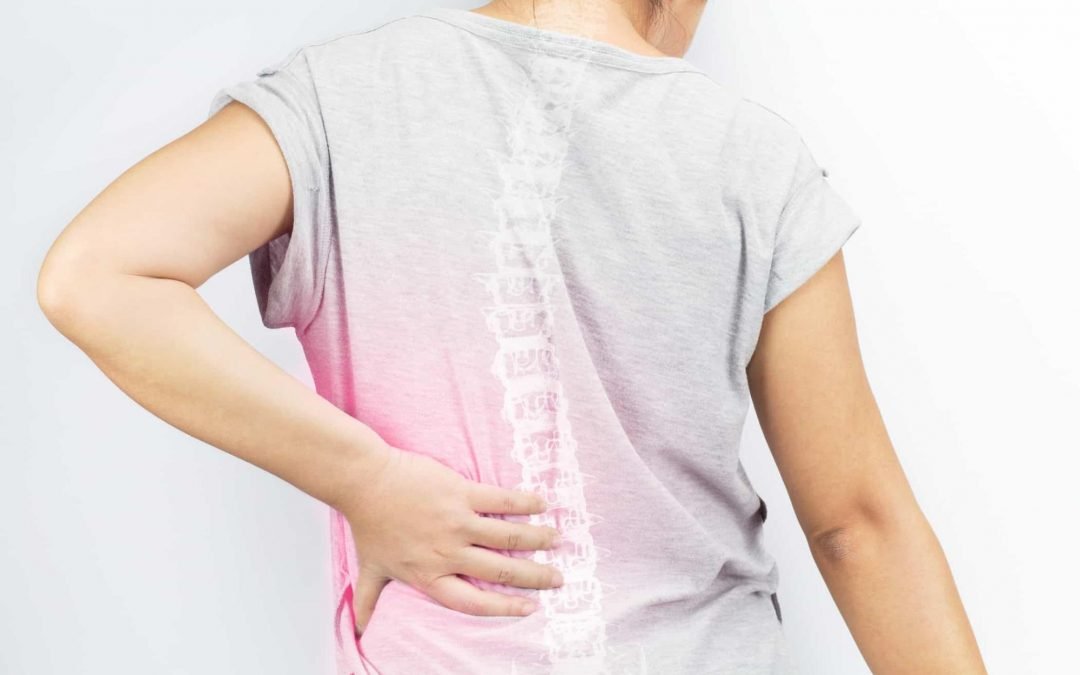 What You Need to Know about Living with Spinal Stenosis